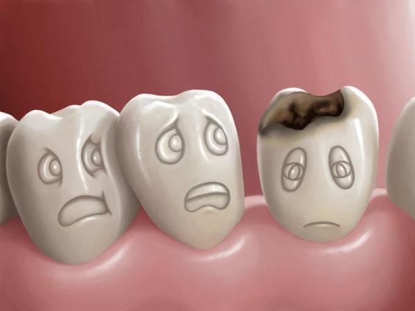 Come proteggere i denti dalle carie?