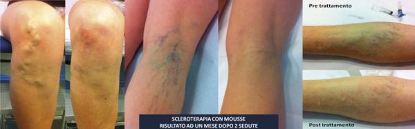 Sclero musse – Sclero terapia delle vene varicose